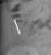 needle_thumb.jpg