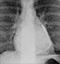 lv_aneurysm_thumb.jpg