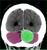 meningioma_2_thumb.jpg