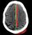 subdural_tent_thumb.jpg