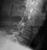 c-spine_facet_dislocation_2_thumb.jpg