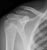 clavicle_a_thumb.jpg